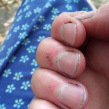 Korekcija noktiju u organskoj poljoprivredi. Povoljno